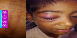 معلم تسبب بدخول طالب بلوشي إلى المستشفى